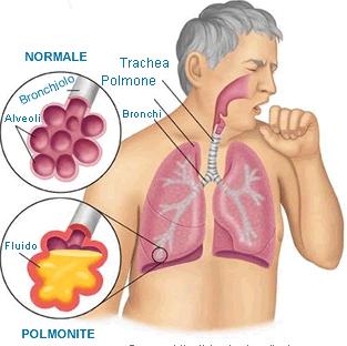 obat-tradisional-penyakit-bronkitis-kronis